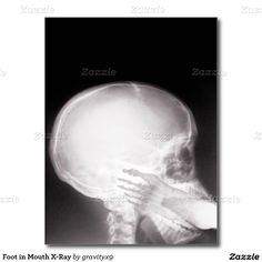 Foot in Mouth X-Ray Postcard - Radiologist Gift Idea