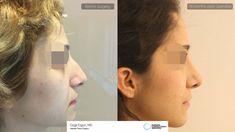 #Rhinoplasty #surgery Ozge ERGUN, MD ® https://ozgeergun.com.tr/en/ 📲 WhatsApp: +90 538 081 4372 #PlasticSurgery #PlasticSurgeryturkey #NoseJob  #nosejobturkey #rhinoplastyturkey #rinoplastia #rinoplastiaestetica #Nasenkorrektur #nasenkorrekturistanbul #Aesthetics #beauty #estética #cirugíaplástica #estetica #plastischeChirurgie #chirurgieplastique  #鼻形成術 #整形手术#جراحةالتجميل #næsekorrektion #ринопластика #realself  #Rhinoplastie #Rinoplastica #Näsplastik #näsplastikistanbul