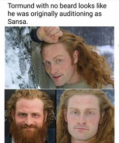 Tormund without his beard, Game of Thrones.