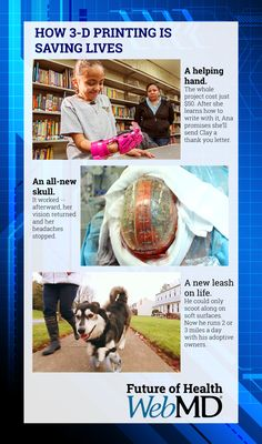 http://www.webmd.com/news/breaking-news/future-of-health/ss/slideshow-3d-printing-changing-lives?ecd=soc_pin_foh_ss_beforeafterss  An All-New Skull  In 2014, Dutch surgeons at the University Medical Center Utrecht replaced the skull of a 22-year-old woman with a 3-D printed plastic dome. It took doctors 23 hours to complete the surgery. It worked -- afterward, her vision returned and her headaches stopped. #3DPrinting #science #health #future