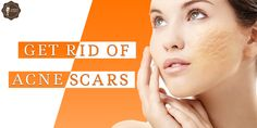 For those who desire a safe alternative to get rid of the #scars left behind from pimples and #acne, try some of these clever #natural #solutions.
