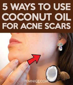 How To Use Coconut Oil For Acne Scars (5 Ways) #acnetip