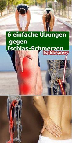 6 einfache Übungen gegen Ischias-Schmerzen | drndex.com