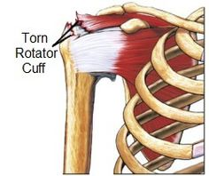 One of the most effective treatments for a torn rotator cuff is rehab exercises