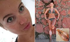 #Vitiligo sufferer who was bullied for looking like a 'burns victim' finally gets the confidence to flaunt her skin.