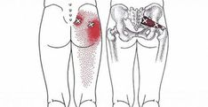 10 Piriformis Stretches To Help You Get Rid Of Sciatica, Hip And Lower Back Pain. Hip and lower back pain can come as a result of an irritation of the sciatic nerve. This pain can spread downwards and can affect the limbs and the feet. Sciatica Stretches, Sciatica Pain Relief, Sciatic Pain, Piriformis Exercises, Muscle Stretches, Hip Pain Relief, Sciatica Massage, Scoliosis Exercises, Lower Back Pain Relief