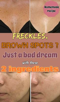 Get rid of skin hyperpigmentation with the best homemade recipe.