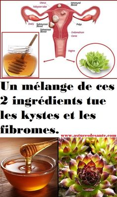 A mixture of these two ingredients kills cysts and fibroids - Fitness Tips, Health Fitness, Natural Brows, Super Natural, Face Hair, Body Care, Health Tips, Detox, The Cure