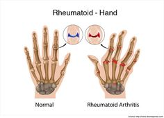 Vitamin Supplements for Rheumatoid Arthritis >>> You can find more details by visiting the image link.