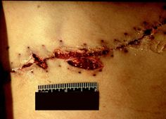 Stab wounds incorporated into surgical incision - therapuetic intervention can cause difficulties in wound interpretation for the pathologist