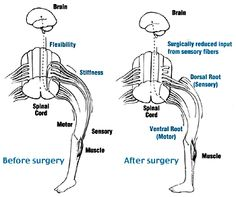 Selective Dorsal Rhizotomy (SDR)  Source: St. Louis Children's Hospital