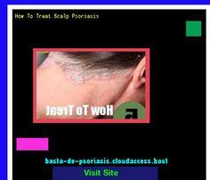 How To Treat Scalp Psoriasis 225542 - Basta De Psoriasis!