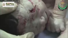 Miraculous: #Syria|n baby in #Aleppo saved from the womb after shrapnel pierced his moms belly and scraped his head.  via Twitter @AlistairReign & AlistairReignBlog.com. I report on current events from around the world related to #HumanRights #ChildRightsWatch #Refugees #Politics #HumanitarianAid. The world can no longer turn a blind eye to the genocide of babies, children, innocent women and men trapped inside a war-torn country.