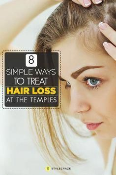 8 Simple Ways To Treat Hair Loss At The Temples Thinning hair can be annoyingly unpleasant, especially when it starts at your temples. Worry not, here we give you simple ways to treat temple hair loss. Normal Hair Loss, Why Hair Loss, Hair Loss Cure, Oil For Hair Loss, Stop Hair Loss, Hair Loss Women, Hair Loss Remedies, Prevent Hair Loss, Best Hair Loss Shampoo