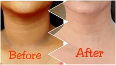 How to Get Rid of Dark Neck Fast & quickly Lighten Dark neck fast and naturally with these 3 simple steps Dark neck is usually caused by poor hygiene, over s. Dark Spots On Neck, Dark Skin Around Neck, Dark Spots Under Armpits, Dark Neck Remedies, Skin Care Remedies, How To Whiten Underarms, How To Grow Your Hair Faster, Lighten Skin, Skin Treatments
