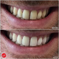 Before and after results of our Zoom4 Teeth Whitening treatment. Find out more about our treatments: link in our bio! #drlevis by dr.levis Our General Dentistry Page: http://www.lagunavistadental.com/services/general-dentistry/ Google My Business: https://plus.google.com/LagunaVistaDentalElkGrove/about Our Yelp Page: http://www.yelp.com/biz/fenton-krystle-dds-laguna-vista-dental-elk-grove-3 Our Facebook Page: https://www.facebook.com/LagunaVistaDental/ Laguna Vista Dental 7915 Laguna Blvd…