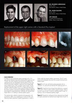 Incisive Canal에 대한 이미지 검색결과 Implant Esthetics Anatomy