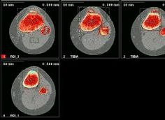 A scan of Osgood Schlatters knee http://www.strickland-protocol.com/