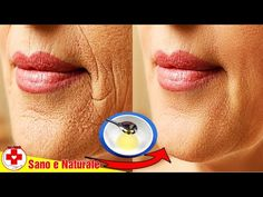 Remove Wrinkles Around Mouth Naturally With This Technique Home Remedies For Wrinkles, Extreme Hair Growth, Lip Wrinkles, Skin Spots, Beauty Tips For Face, Rosehip Oil, Wrinkle Remover, Tips Belleza, Facial Care