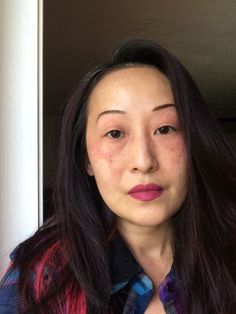 Skin Matters: How I Healed My Face Post Angioedema - Sheela Writes Rash On Face, Character Makeup, Healing, Essential Oils, Fitness, Costume Makeup, Essential Oil Uses, Essential Oil Blends