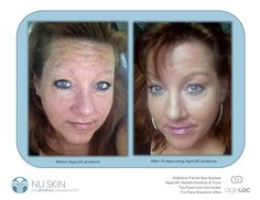 INCREDIBLE RESULTS LISA LETBETTER…. 74 Day face results