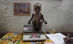 Severely malnourished two-year-old girl, Rajni, is weighed by health workers at the Nutritional Rehabilitation Centre of Shivpuri district in the central Indian state of Madhya Pradesh, Feb. Poverty And Hunger, 2 Year Old Girl, World Hunger, Picture Story, Big Picture, World Problems, Pictures Of The Week, Two Year Olds, Weird World
