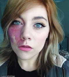 port wine stain birthmark on face Woman Told She Was Too Ugly To Love And Undateable Proudly Shows Facial Birthmark - Shes Tired Of Hiding Under Make-Up Pretty People, Beautiful People, Vitiligo Treatment, Pelo Natural, Human Body, Being Ugly, Character Inspiration, Characters, Birth Marks