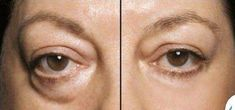 Photo: Crazy good. Look good & feel even better with Instantly Ageless by Jeunesse.