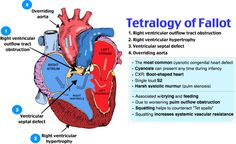 """Tetralogy of Fallot Patient with a history of episodes of cyanosis (tet spells) and squatting for relief PE will show pulmonic stenosis, right ventricular hypertrophy, overriding aorta, VSD CXR will show """"bootshaped"""" heart Comments: Most common cyanotic congenital heart disease Mnemonic: PROVe:: Pulmonic stenosis, Right ventricular hypertrophy, Overriding aorta, VSD"""