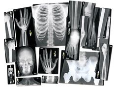 Human X-Rays - Set of 18 at Lakeshore Learning Human Body Model, Body Preschool, Preschool Toys, Preschool Ideas, Asylum Halloween, Halloween 2020, Overhead Projector, Lakeshore Learning, Classroom Supplies