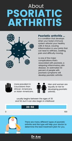 Psoriatic Arthritis + 7 Natural Ways to Relieve Symptoms Psoriatic arthritis is one of the major complications that's associated with psoriasis, a relapsing inflammatory skin disease. An estimated 30 . Psoriasis Symptoms, Psoriasis Arthritis, Rheumatoid Arthritis Treatment, Arthritis Pain Relief, Arthritis Remedies, Arthritis Exercises, Psoriasis Diet, Psoriasis Remedies, Symptoms Of Rheumatoid Arthritis