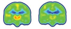 A new study from Massachusetts General Hospital investigators has found, for the first time, evidence of neuroinflammation in key regions of the brains of patients with chronic pain. By showing that levels of an inflammation-linked protein are elevated in regions known to be involved in pain transmission, the study paves the way for the exploration of potential new treatment strategies and possibly for biomarkers reflecting pain conditions.