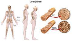 E' utile assumere integratori nutrizionali a base di calcio e vitamina D nella #menopausa per ridurre l'incidenza di #osteoporosi e quindi di fratture?