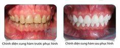 Bọc răng sứ nacera giá bao nhiêu?