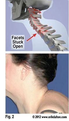 Treating the Dreaded Dowager Hump   Freedom From Pain Institute