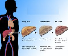 5 Signs And Symptoms Of Liver Disease - Ways To Identify Symptoms Of Liver Disease | Ayurvedic Natural Cure Supplements