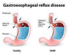 Home Remedies For Gastro Esophageal Reflux Disease (GERD)