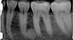 Diagnosis and treatment for Breakthrough Clinical oral pathology case: No. 21