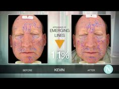 So glad that Kevin talked about his clinical trial Nerium Experience. This product works great on guys!
