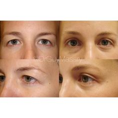 Beautiful brow reshaping results for this patient after an endoscopic brow lift! When I perform a brow lift I focus on brow shape and contour more than height. This approach creates natural and youthful results  #eyelidexpert #browlift #browshape #endoscopicbrowlift #transformationtuesday