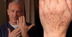O médico descobriu uma solução natural, rápida e verdadeiramente poderosa para fazer com que essas manchas desapareçam.