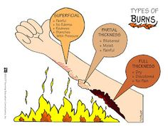 Types of Burns There are three different kinds of burns. They are classified by how severely the skin is burned. The three types of burns are superficial burn, partial thickness burn, and full thickness burn. Rn Nurse, Nurse Life, Nurse Bag, Nurse Stuff, Types Of Burns, Nursing Information, Nursing School Notes, Nursing Schools, Medical School