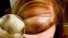 A nivel mundial, el cabello es un símbolo de belleza en las mujeres. Y es que para bien o para mal, el pelo está ubicado en una zona visible del cuerpo: la cabeza. Es por eso que las mujeres invierten horas y horas en el cuidado del cabello. Anuncios Sin embargo, a pesar de todo …
