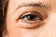 Learn the secrets of how to get rid of puffy eyes, and remove dark circles and eye bags. Check out our tips for puffy eyes and find a dark circles remedy. Puffy Bags Under Eyes, Under Eye Bags, Puffy Eyes, Asana Yoga, Under Eye Puffiness, Tips Belleza, Essential Oil Blends, Essential Oils, Dark Circles