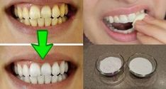 A Dentist Friend Told Me How To Eliminate Tartar, Gingivitis and Whiten My Teeth In 4 Steps With This Homemade Recipe Baking Soda Teeth, How To Prevent Cavities, Best Teeth Whitening, Oral Health, Teeth Health, Health Advice, Easy Workouts, Coconut Oil, Pinterest Mode