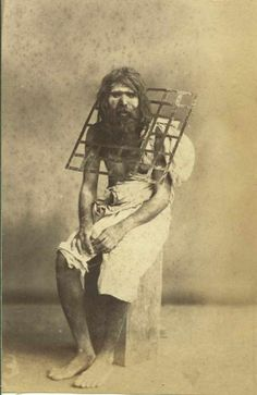 Asceticism is a lifestyle characterized by abstinence from various worldly pleasures This guy welded a metal grid around his neck so he could never lie down again #crazy #asceticism #lifestyle #characterized #abstinence #various #worldly #pleasures #welded #metal #grid #neck #entertainment #interesting
