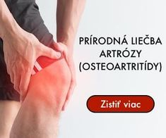 Prírodná liečba osteoartritídy Fitness Humor, Health Fitness, Home Recipes, Dover Publications, Natural Medicine, Holding Hands, Hair Beauty, Mindfulness, Workout