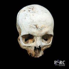Weathering of skeletal remains via @UPAnthro on Twitter