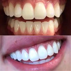 EXCLUSIVO: Novo produto clareador dental vira febre no Brasil, Dental Wallpaper, Teeth Whiting At Home, Dental Bonding, Get Whiter Teeth, Perfect Teeth, Dental Veneers, Skin Gel, Teeth Bleaching, Natural Teeth Whitening