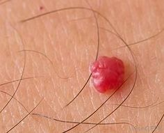 What is a Cherry Angioma? Cherry Angioma, My Beautiful Friend, Cholesterol, Natural Health, Body Care, Detox, Organic, Cosmetics, Food